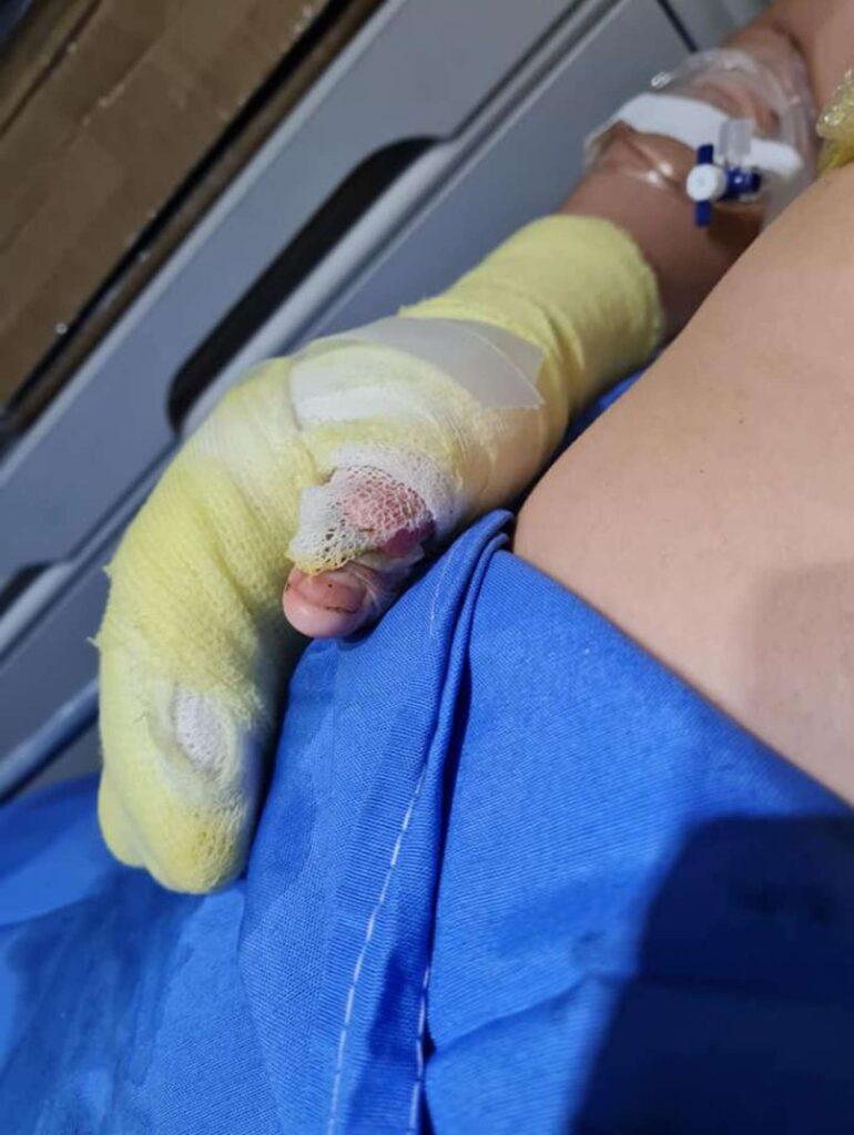 Laferrere – Feria de ciencias: La explosión de un experimento hirió de gravedad a un estudiante